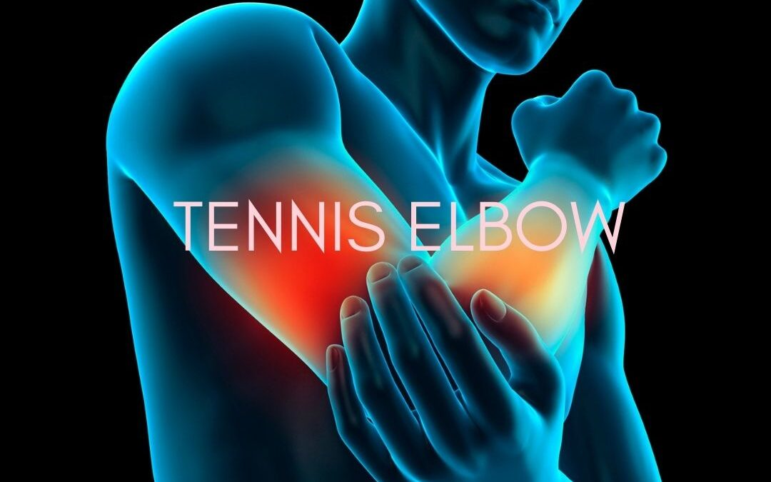 Tennis Elbow  – Pain in the Arm